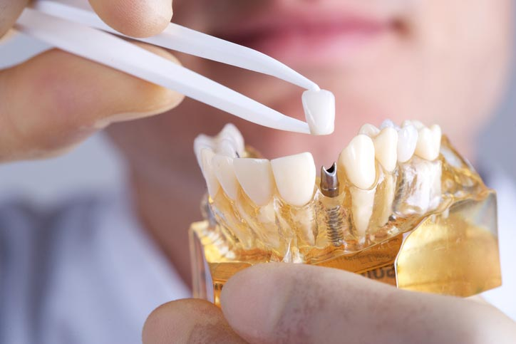 Dental Implant Services in Sioux Falls