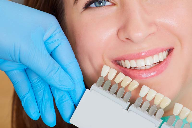 Professional Teeth Whitening Services