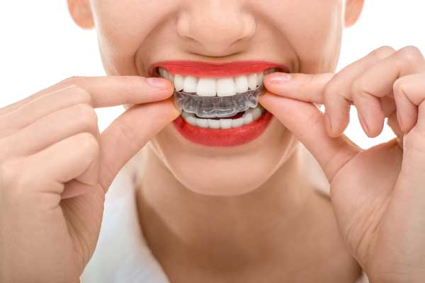 Invisalign Restorative Dentistry